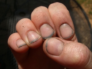 dirty fingernails