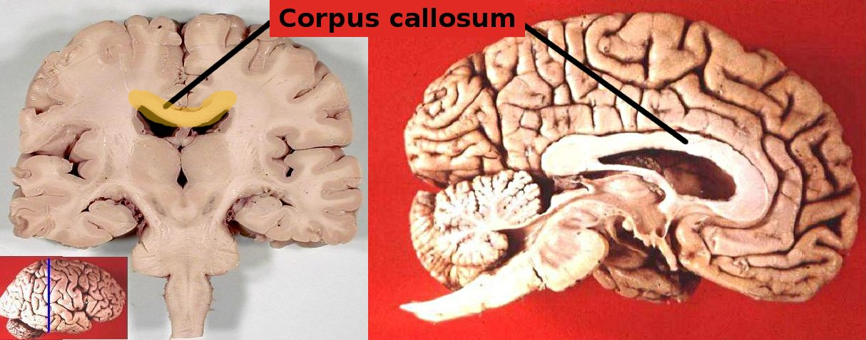 Human Brain Corpus_callosum Wiki Yellow HL | EFHerne\'s Renaissance ...