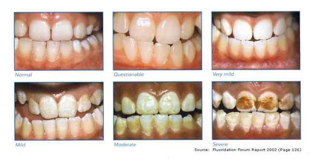 Stages of Fluoride Damage