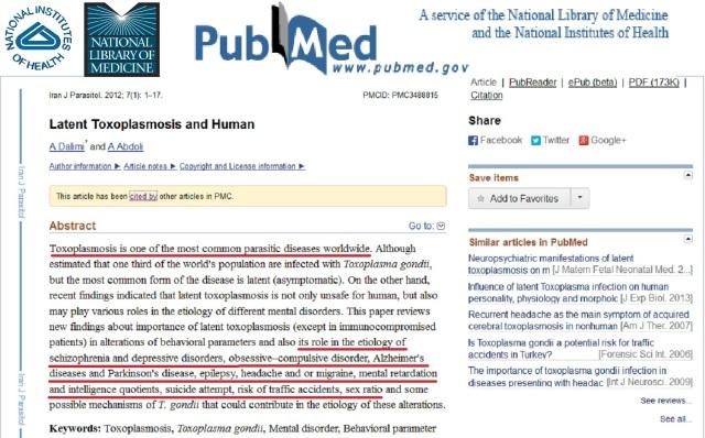NIH Toxoplasmosis in Human.
